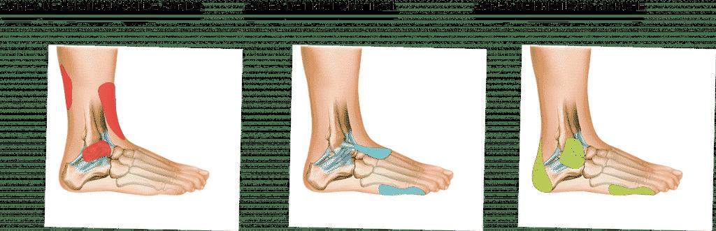 curlynak_cn_moutain_contraintes_pieds